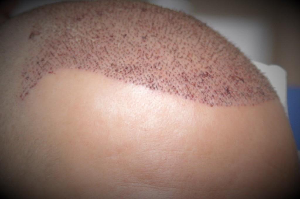 FUE-Haartransplantation in der Türkei