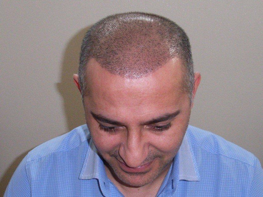 Meine Haartransplantation hat sich gelohnt und war sehr kostengünstig.