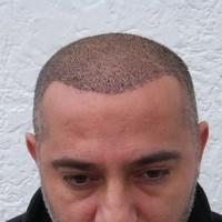 Zwei Wochen nach meiner Haartransplantation kann ich sehen, wie sich meine Haare entwickeln.