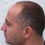 C&B Hairtransplant, C&B Hairtransplant, professionelle Eigenhaarverpflanzung