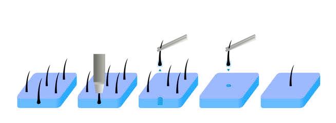 Facharzt für FUE Haartransplantation - Einsetzen der Grafts