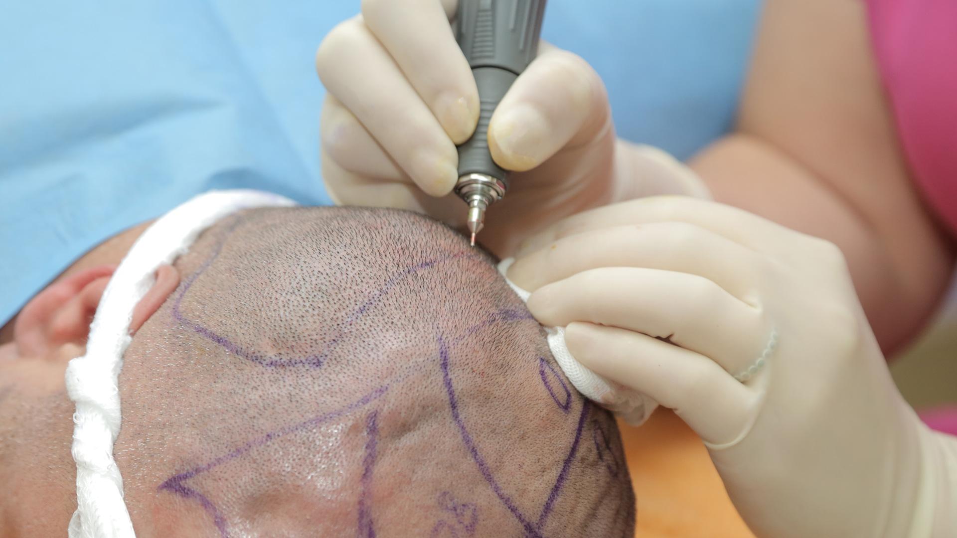 Haartransplantation FUE für Männer - Entnahme der Grafts