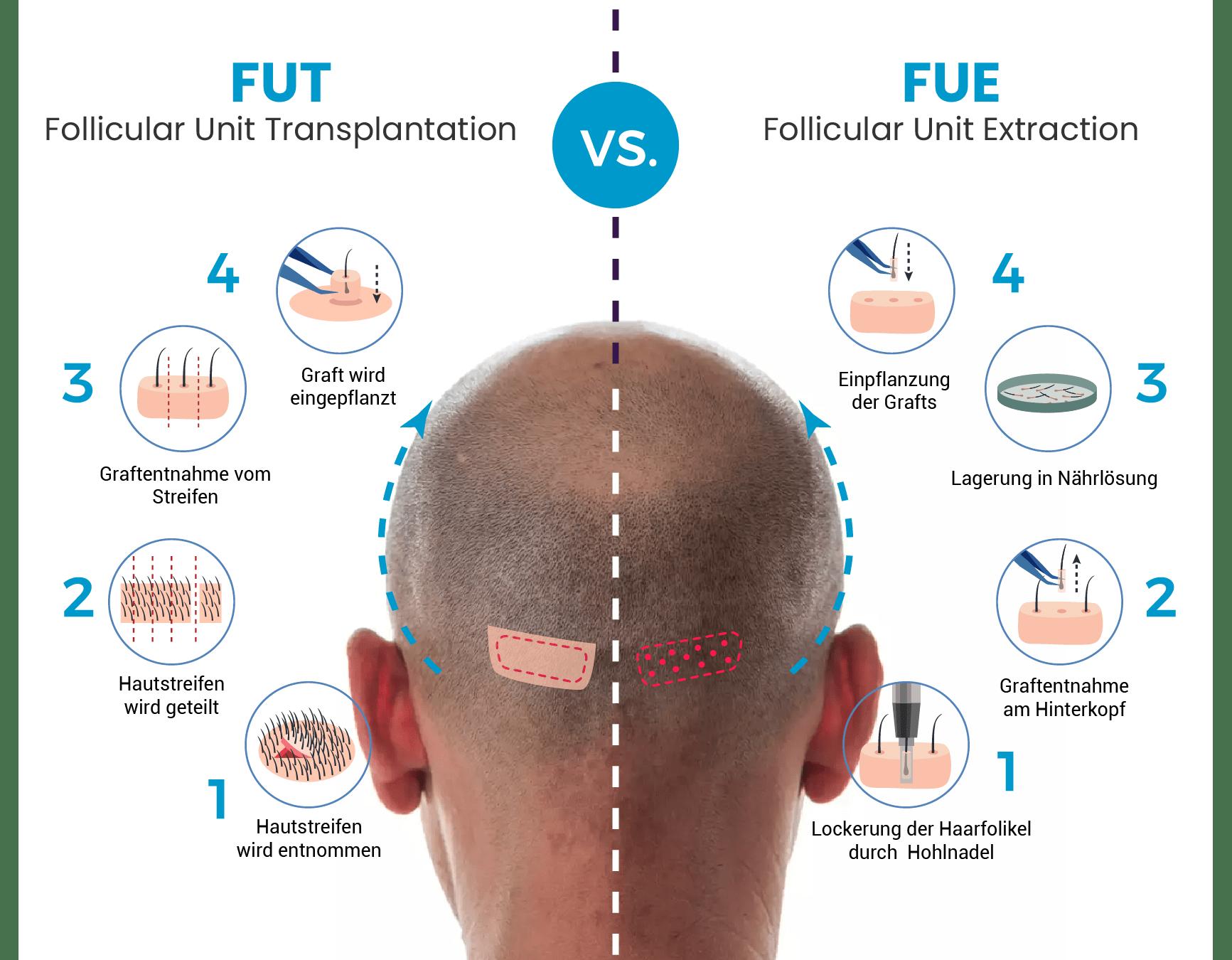 FUE Haartransplantation in der Türkei - Die Methoden