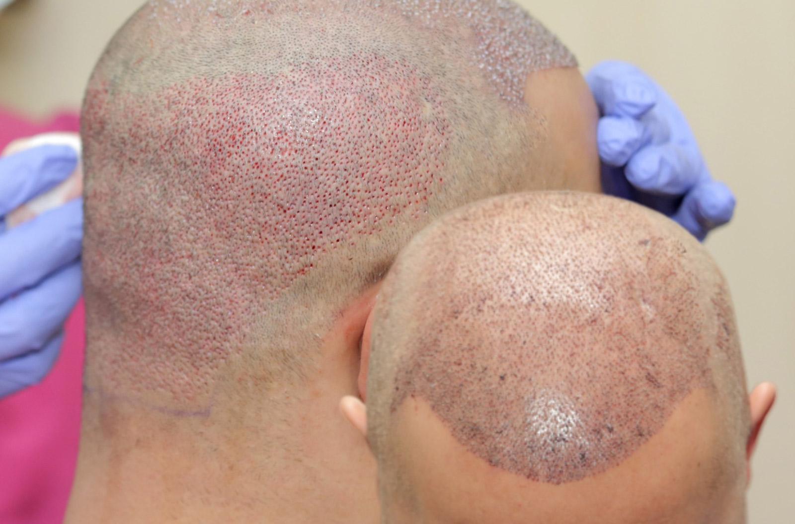 FUE Haartransplantation - Das Ergebnis