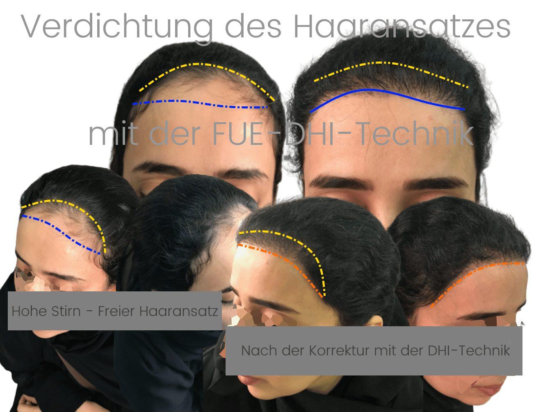 Verdichtung des Haaransatzes bei Frauen mit der FUE DHI Technik